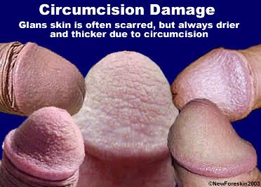 penis damages
